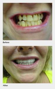 Lumineers Dentist in O'Fallon IL