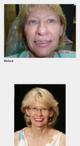 Cosmetic Dentists near St. Louis
