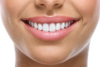 Cosmetic Dentist near St. Louis MO